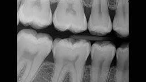 Teeth X-Ray | Dentist Downtown Calgary | Eau Claire Park Dental