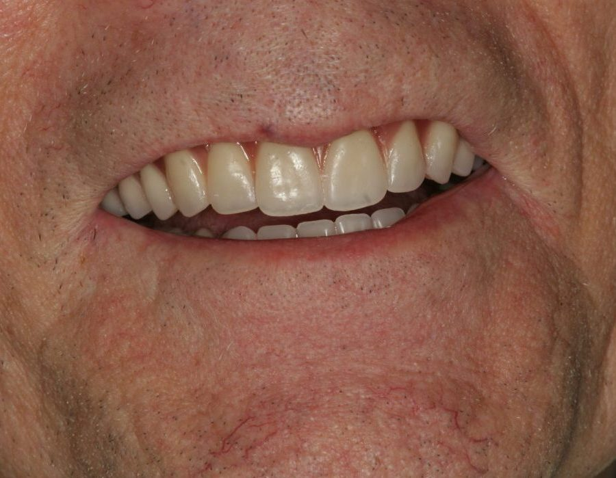 Patient's Teeth   Dentist Downtown Calgary   Eau Claire Park Dental