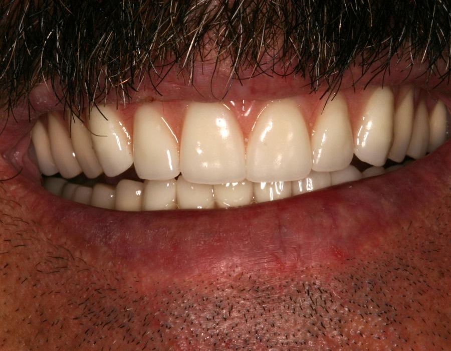 Patient's Teeth | Dentist Downtown Calgary | Eau Claire Park Dental