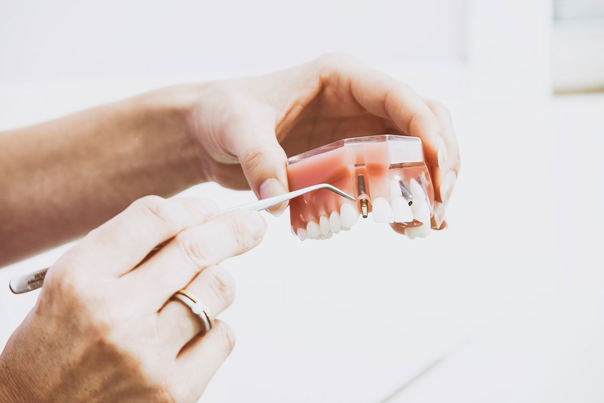 False teeth | Dentist Downtown Calgary | Eau Claire Park Dental