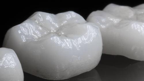 White Crown | Dentist Downtown Calgary | Eau Claire Park Dental