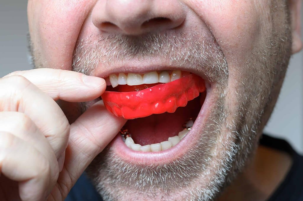 How does a mouthguard protect your teeth | Dentist Downtown Calgary | Eau Claire Park Dental
